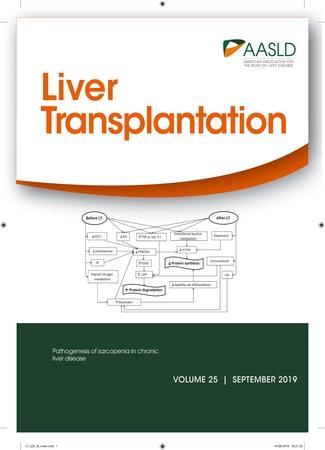 Cover of Liver Transplantation journal - September 2019