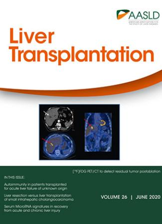 Cover of Liver  June Transplantion June 2020